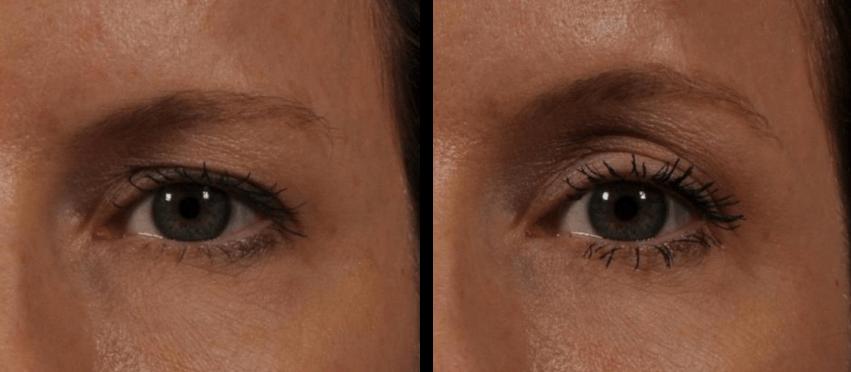Antes e depois Ulthera